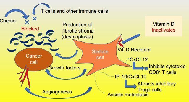 pancreatic cancer vitamin d îndepărtarea negilor plantari cu azot