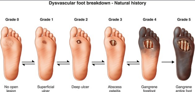 Diabetic Foot Ulcer 3 2 X Or 3 6 X More Likely If Low Vitamin D