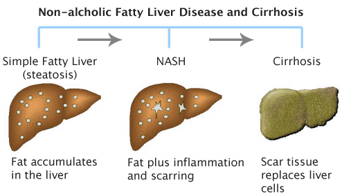 Strong Association Of Non Alcoholic Fatty Liver Disease