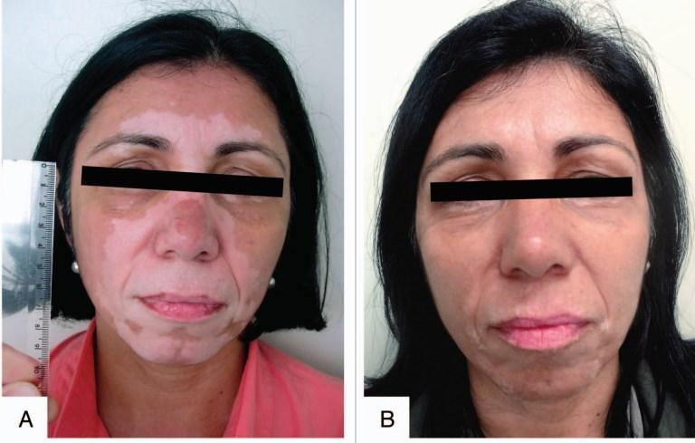 Vitiligo (loss of skin pigment) treated by narrowband UVB |