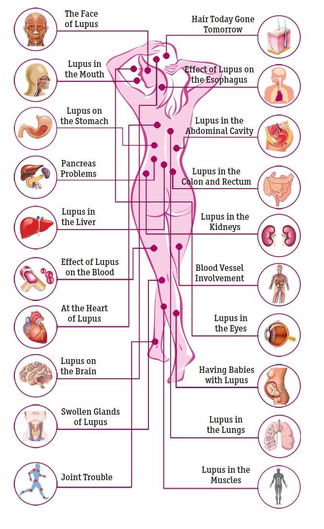lupus | vitamin d wiki, Skeleton