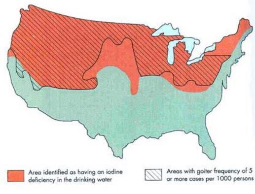 Vitamin D And Iodine Are Similar And Both Are Deficient And - Vitamin d map us