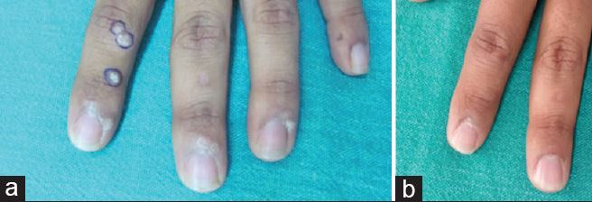 Warts (due to HPV) removed by vitamin D injection, with 90